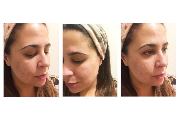 skincare January 2018 skin